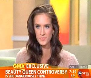 Aussie Beauty Queen: 'I've Never Been Anorexic'
