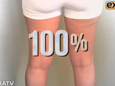 Say Goodbye to Cellulite with Non-Invasive Lipo!