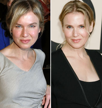 What the Face? Renée Zellweger Is Nearly Unrecognizable