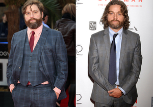 Pics! Zach Galifianakis Reveals Shocking Weight Loss