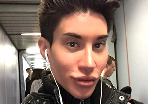 Beauty Roundup: Human Ken Doll Risks Blindness to Have Veins Removed