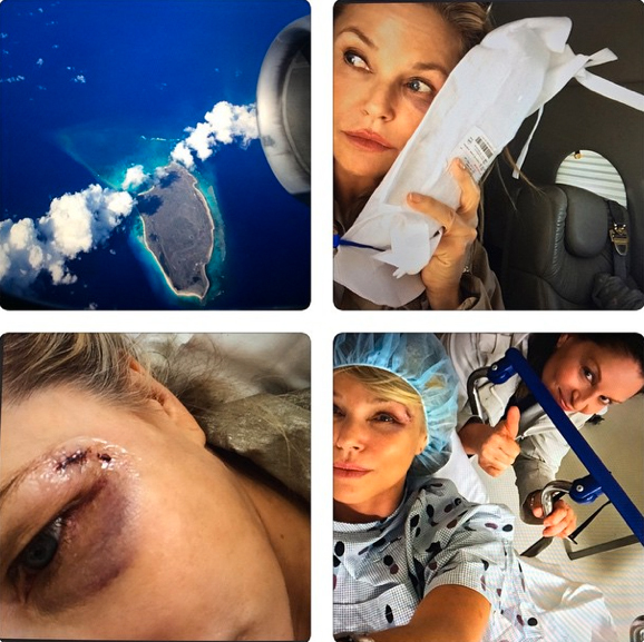 Ow! Christie Brinkley Airlifted to Hospital After Bird Accident