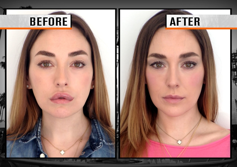 Pucker Up! Get the Ultimate Lip Fix to Deflate and Reshape