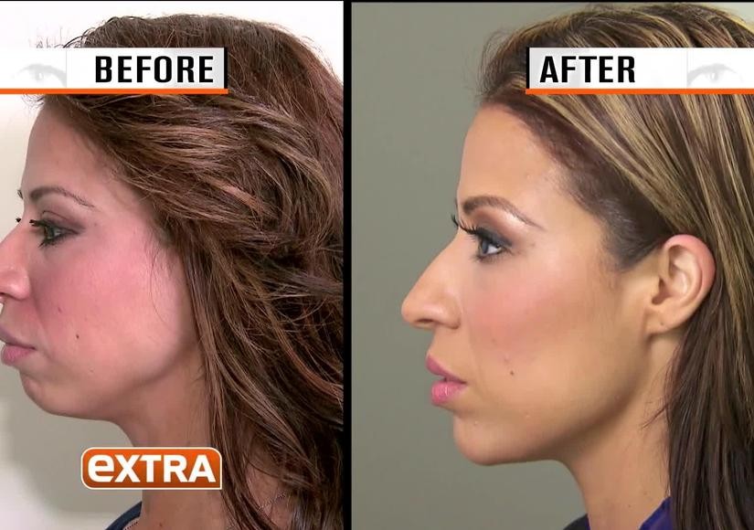 The Facelift That's Breaking All the Rules