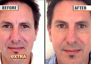 Bro-Tox! Men Are Embracing the Anti-Aging Powers of Botox