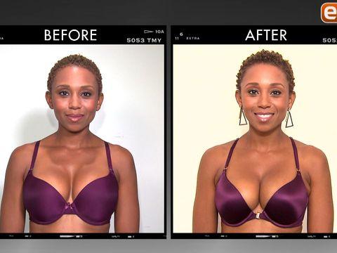 Plastic Surgeon Dr Corbin Beverly Hills Breast