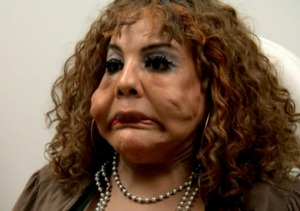 Transformation! 'Cement Face' Woman from 'Botched' Debuts New Look