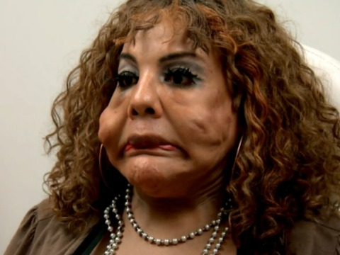 Transformation Cement Face Woman From Botched Debuts