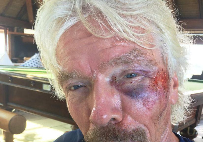 Sir Richard Branson Lucky to Be Alive After Horrific Bike Crash (Warning:…