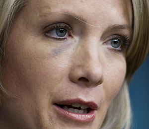 Ouch! Bush's Press Secretary Boasts Black Eye
