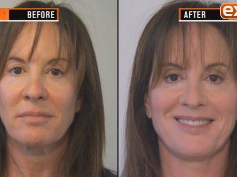 What's an Instant Face-Fixing Gamechanger?