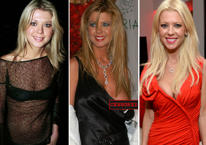 Pics! Tara Reid and Other Stars Who Have Had Plastic Surgery