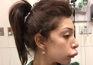 Extra Scoop: First Look at Farrah Abraham's Fixed Lips After Her Trout Pout…