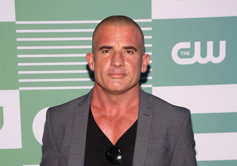 Dominic Purcell In Major Accident On Prison Break Set Warning Graphic Images Extratv Com
