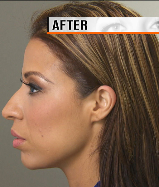 How to Get a Painless Face-lift… Without Any Surgery!