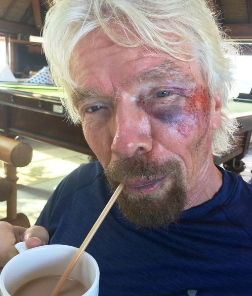 Sir Richard Branson Lucky to Be Alive After Horrific Bike Crash (Warning: Graphic Images)