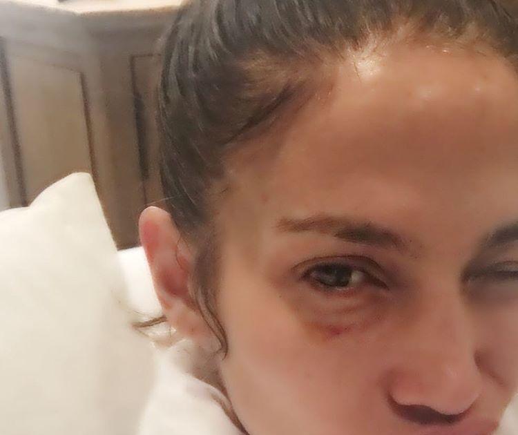 The Real Story Behind Jennifer Lopez S Black Eye Extratv Com
