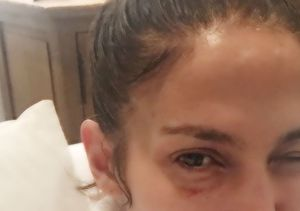 The Real Story Behind Jennifer Lopez's Black Eye