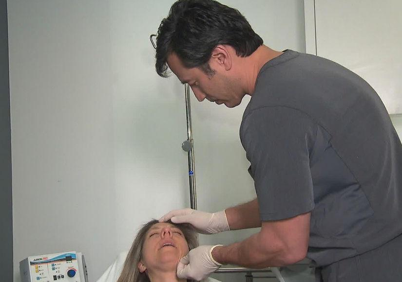 The 'Profound' Non-Invasive Face-Lift