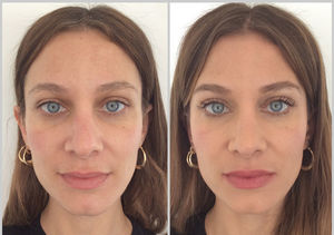 Beauty in Real Time: The Cosmetic Fix for Dark Circles Under the Eyes