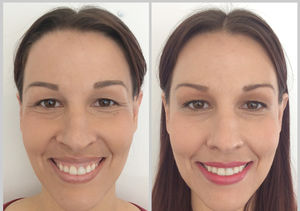 Beauty in Real Time: A Quick and Painless Way to Fix a Gummy Smile