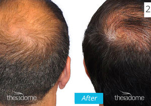 Experiencing Hair Loss? This FDA-Approved Helmet Uses Lasers to Stimulate Growth