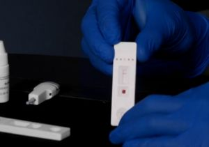 Understanding the COVID-19 Rapid Antibody Test and Why It's Useful