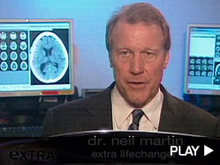 Dr. Neil Martin protects your brain